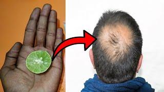 कितना भी पुराना गंजापन हो बाल 100% उग आयेंगे || बाल उगाने का इससे अच्छा और कोई नुस्खा नहीं