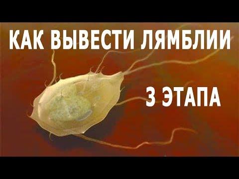★ Как вывести лямблии. 3 этапа очистки от глистов. Освободись от паразитов.