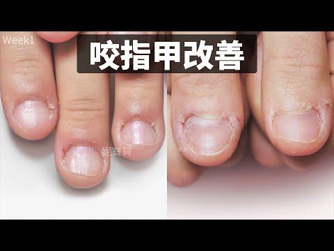 咬指甲改善 醫學系女學生 破壞指甲後遺症處理