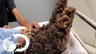 My Shocking Story: Treeman the Cure - Hospital Life
