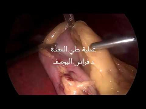 عملية تكميم المعدة -laparoscopic gastric plication
