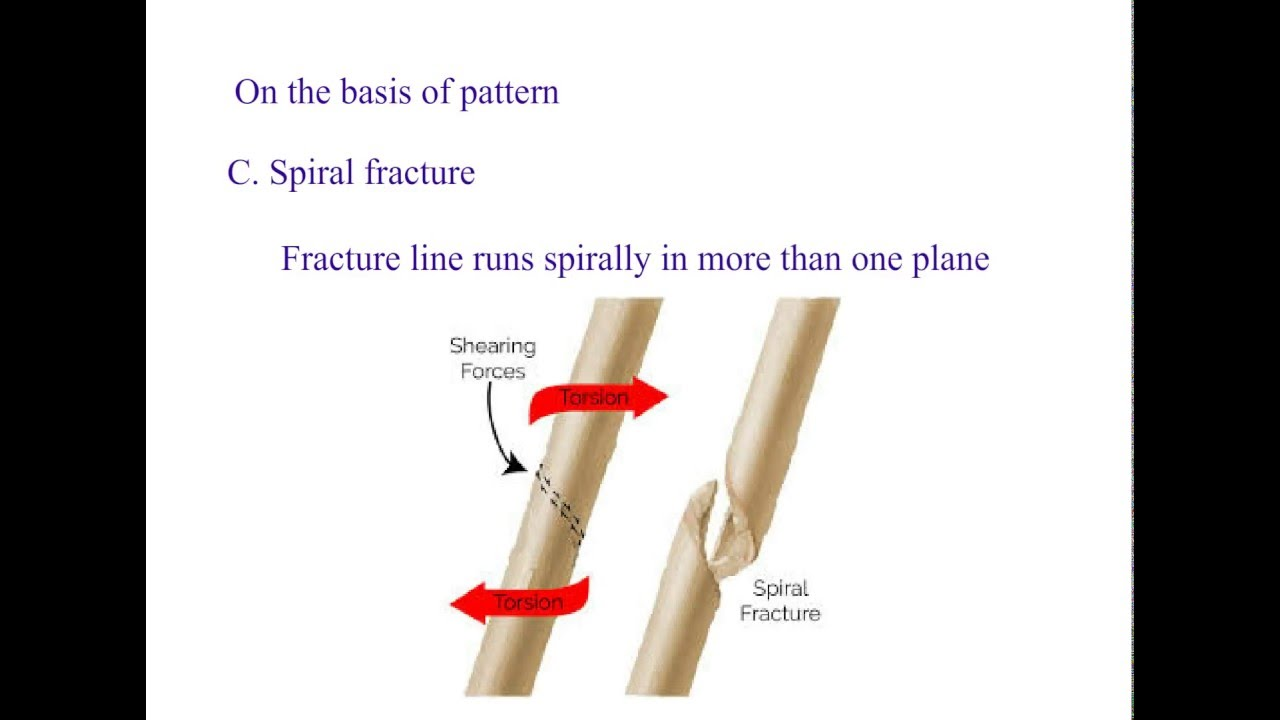 Types of fracture classification, orthopaedics - YouTube