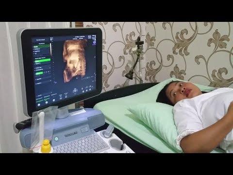 Vlog Cek USG Usia Kandungan 8 Bulan, adik shinta dan shanti cewek apa cowok?? - pregnancy scan