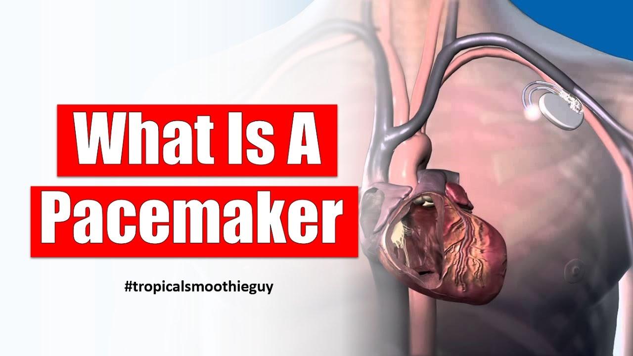 Heart Pacemaker Topsimages