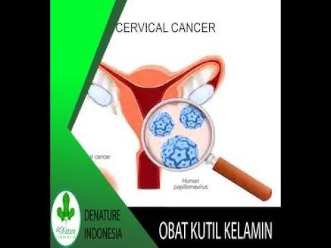 kutil kelamin penyebab kanker serviks - YouTube