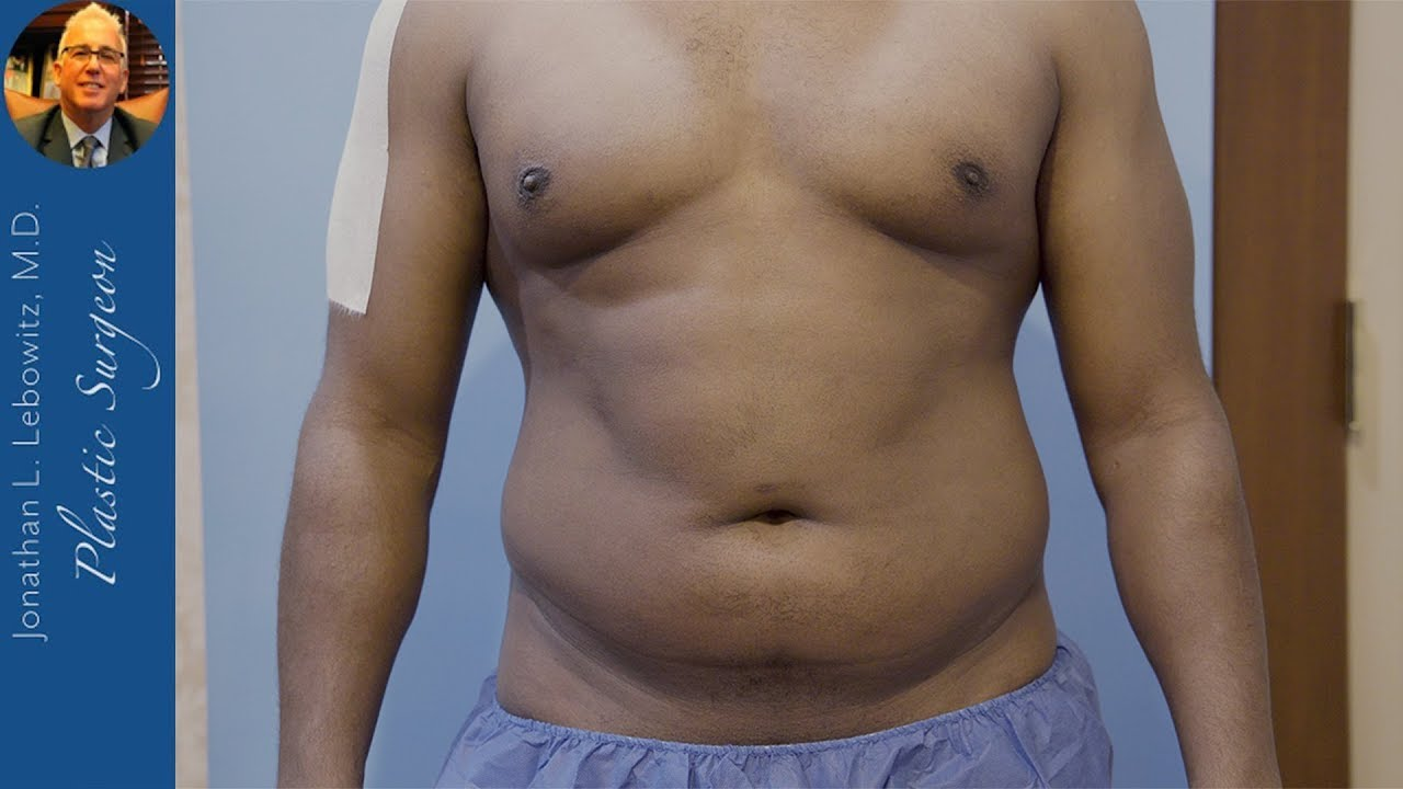 MALE CHEST, ABDOMEN, FLANKS & BACK 4D Hi-Defination VaserLipo By Dr. Lebowitz, Long Island, New