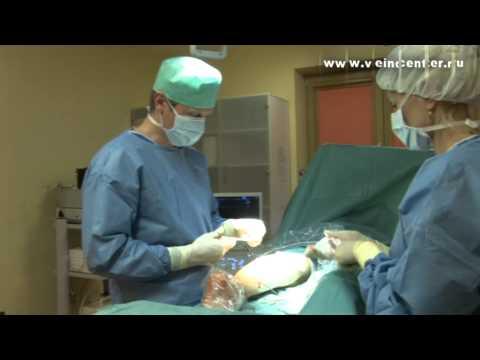Лечение трофических язв на ногах | консультация | трофическая | варикозного | расширение | варикозных | варикозное | флеболога | флеболог | варикоза | больница