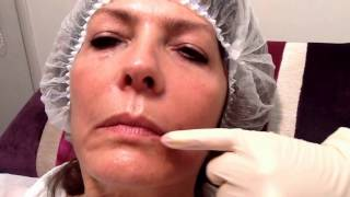 Juvederm Volift to lift Mouth Corners - Outline Clinic, Droitwich, UK