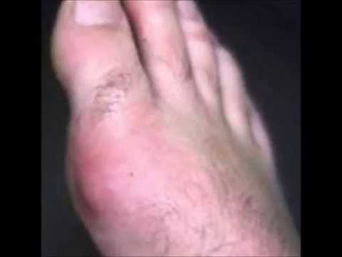 can you get gout in your knee gout swollen toe pictures uric acid blood analysis