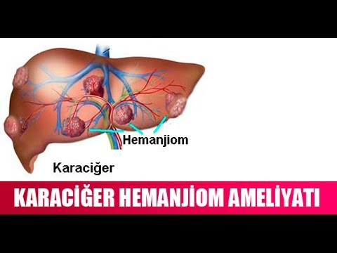 Karaciğer hemanjiyomu: semptomlar, tedavi