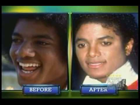 Michael Jackson: Too Much Plastic Surgery?