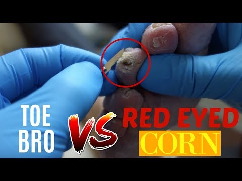PAINFUL CORN REMOVAL AND THICK TOENAIL CLIPPING!!!