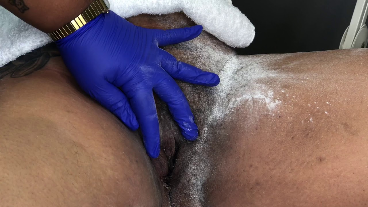 Download 15 Minute BRAZILIAN: Sugaring Thick Coarse Hair | Esthetician Jaq Gibson