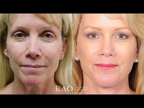 Kao Plastic Surgery - PONYTAIL LIFT™   Hard to believe but it is true!