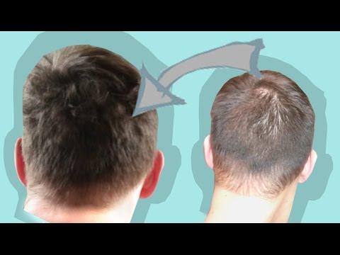 PatTipps & Tricks: Volleres Haar & weniger Lücken!
