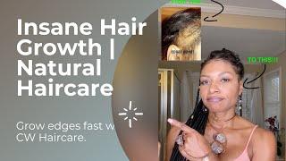 INSANE HAIR GROWTH!   You CAN GROW Your Hair Back  Hair Growth   NATURAL HAIRCARE   GROW EDGES FAST