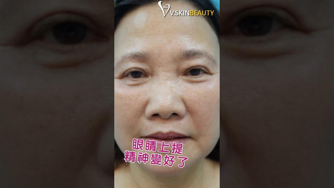 維納斯時尚診所-嬤嬤也愛美~日式提眼肌手術 - YouTube