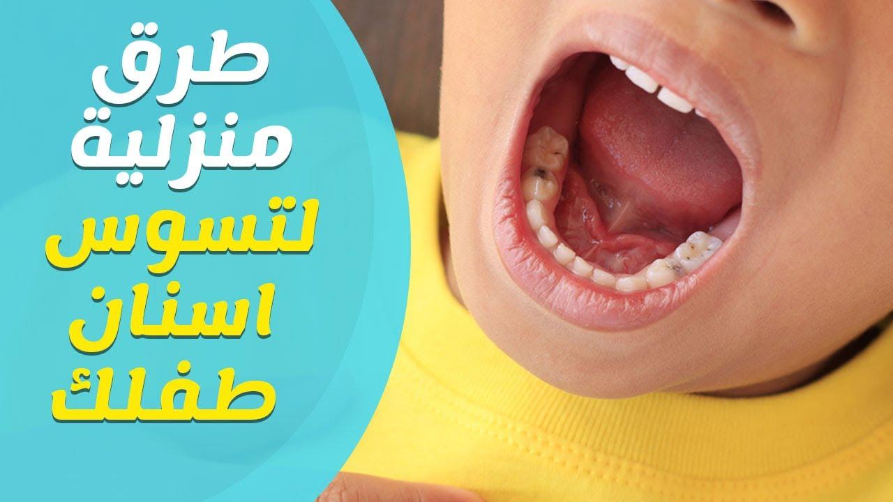 طرق منزلية لعلاج تسوس الاسنان عند الاطفال وطرق الوقاية منه Youtube
