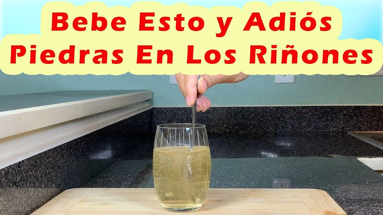 Bebe Esto y Adiós Piedras En Los Riñones - Como Eliminar Los Cálculos Renales Rápidamente