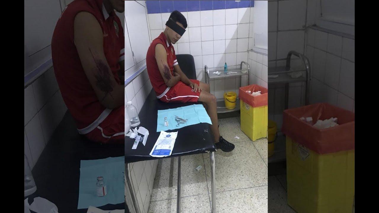 كشـ24 تنقل شهادات صادمة لضحايا الاعتداء الوحشي من طرف جمهور آسفي
