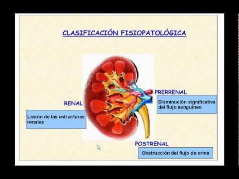Anestesia em transplantação renal | Estudo Geral