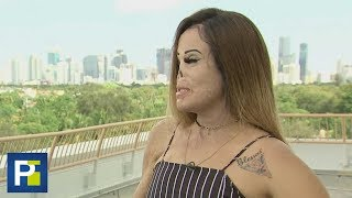 Una mujer desfigurada busca inspirar a otros con su ejemplo thumbnail