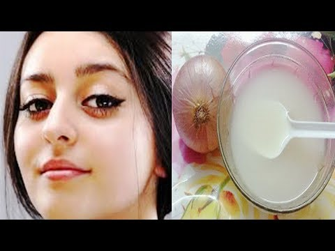 I APPLIED ONION JUICE ON MY FACE FOR 40 DAYS AND RESULTS WERE AMAZING
