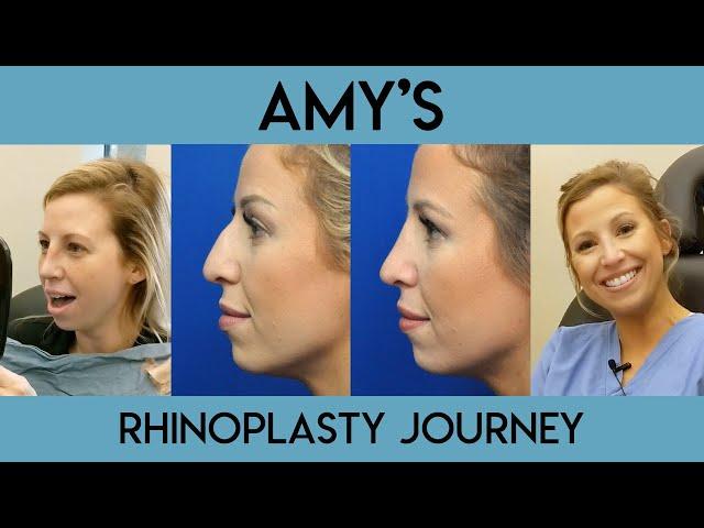 Amy's Rhinoplasty Journey
