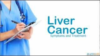 Liver Cancer: Symptoms and Treatment
