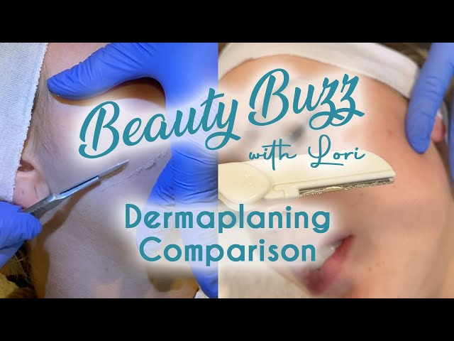 Beauty Buzz with Lori: Dermaplaning Comparison