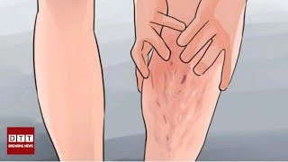 Comment traiter naturellement les varices ?