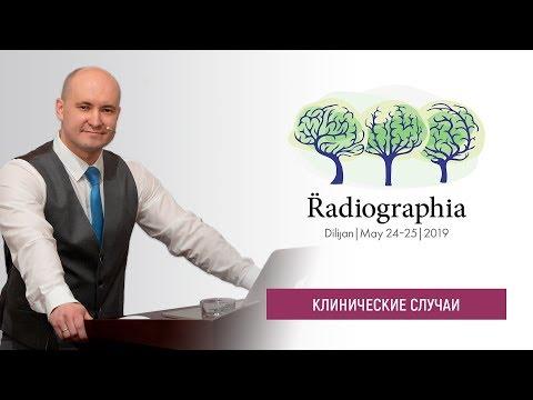 Роман Воложанин. МР-диагностика нейрометаболических заболеваний у детей