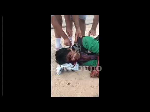 Imágenes sensibles. Grave herido por un machetazo en el norte provincial