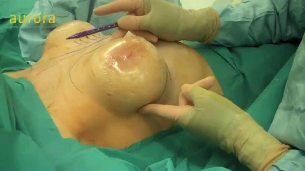 Visa high profile breast implants