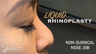Liquid Rhinoplasty | Non Surgical Nose Job | Barrett Plastic Surgery | Beverly Hills