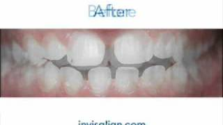 Invisalign Teeth Straightening at Alouf Aesthetic Dentistry in Salem Roanoke, VA Thumbnail