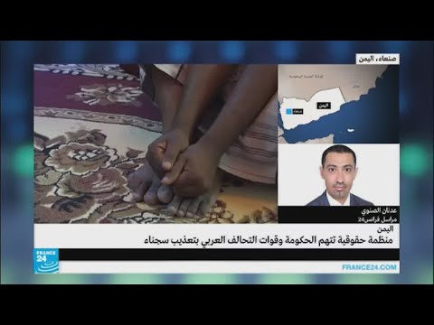 منظمة حقوقية تتهم الحكومة وقوات التحالف العربي بتعذيب سجناء  - نشر قبل 14 ساعة