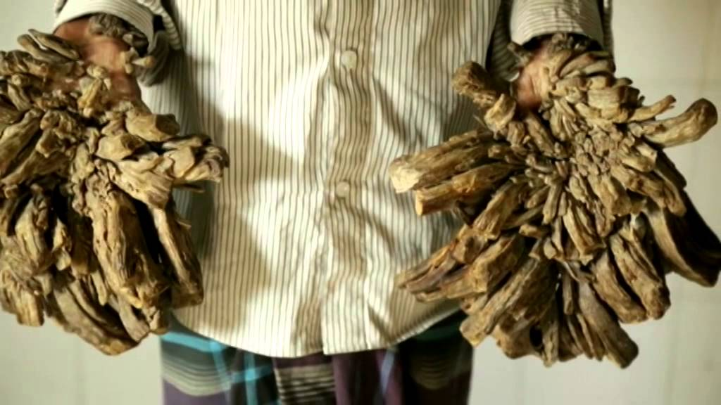 la extra a enfermedad del hombre rbol de bangladesh