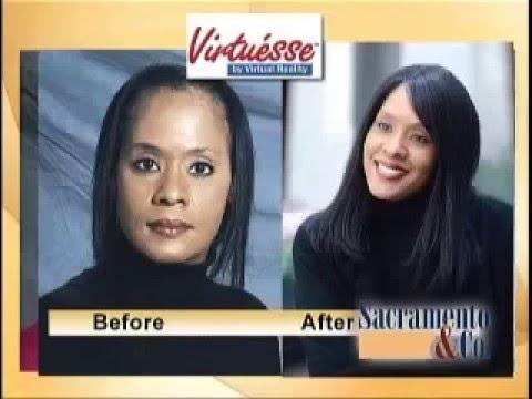 hair loss Sacramento