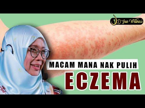 Dr Jue.. Eczema.. Bagaimana Nak Pulih
