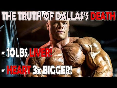 Why Dallas McCarver passed away?! CRAZY AUTOPSY RESULTS(Simplified)