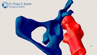 Planejamento 3D para um caso complexo de prótese do quadril.