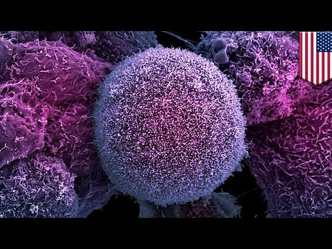 Cancer research: Cells that rise from the dead may spread cancer in the body - TomoNews