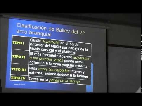QUISTE BRANQUIAL - YouTube