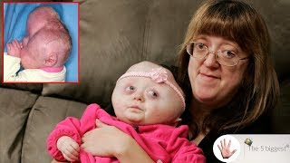 The girl with cloverleaf head! Before and after surgery pictures! ~ Body Bizarre