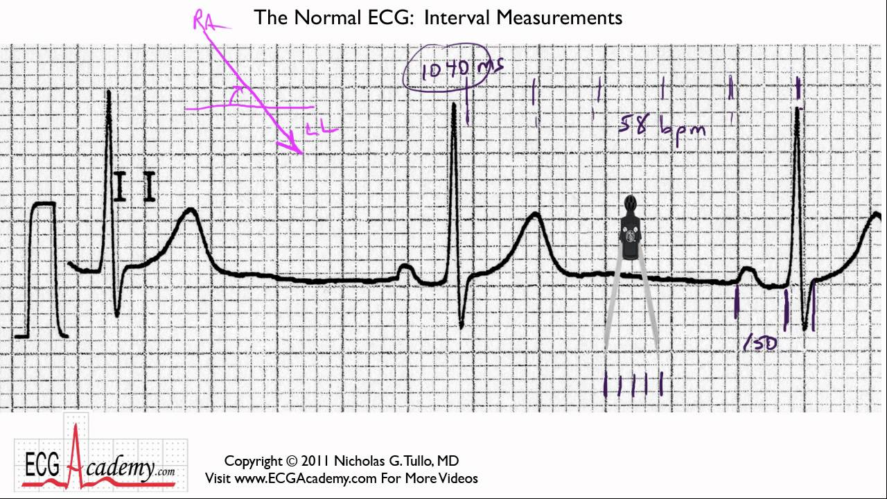 Ekg measuring strip
