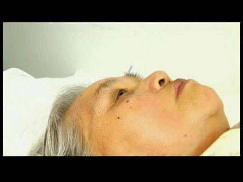 acupuncture pricing rejuvenation Facial