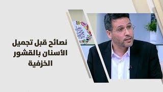د. هاني عبدالهادي - نصائح قبل تجميل الأسنان بالقشور الخزفية