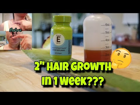 "How To Make Aloe Vera Hair Growth Serum | How To Grow Your Hair 2"" In 1 Week 