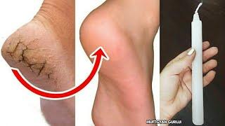 1 दिन में फटी एड़ियां से छुटकारा पाये ! Cracked Heels Remedy & Crack Heel Treatment thumbnail